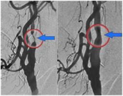 Penyempitan pembuluh darah sebagai pencetus serangan stroke. Pada gambar di sebalh kanan tampak intervensi dilakukan dengan pemasangan stent untuk melebarkan saluran pembuluh darah